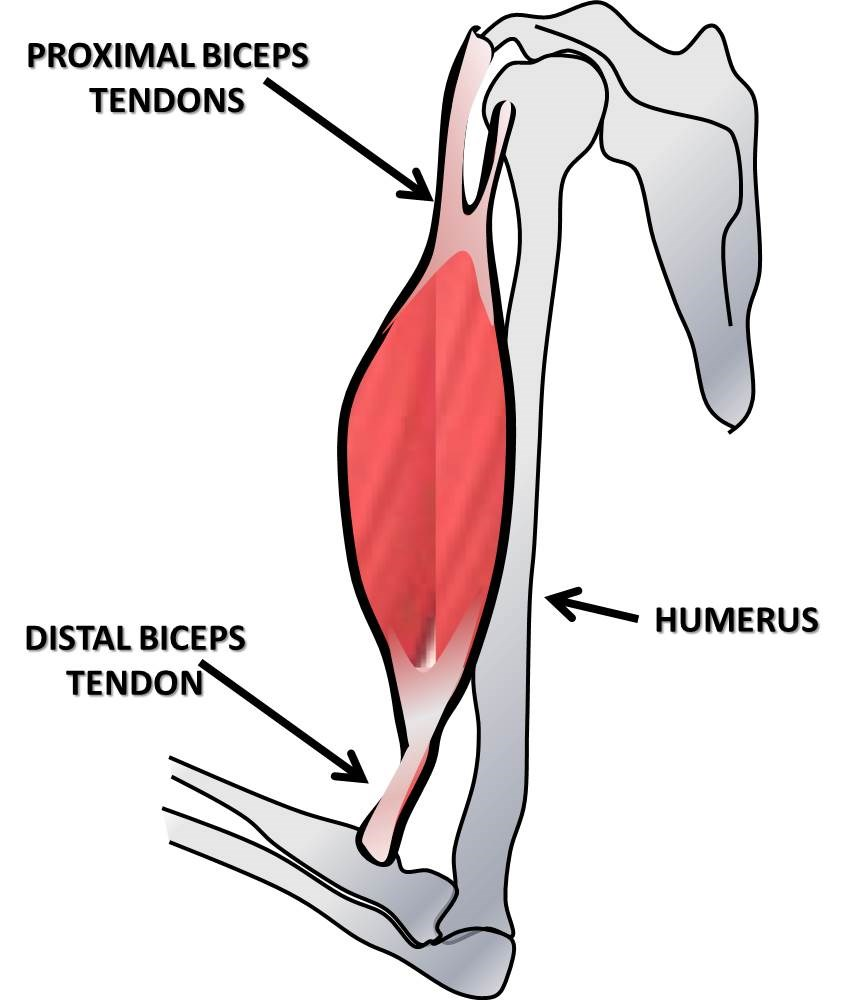 biceps tendon rupture with post operative complications Bierwagen d rupture of the distal tendon of the biceps brachii operative  complications of proximal biceps  biceps tendinopathy and tendon rupture.